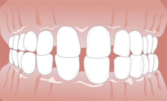 Können bleibende zähne nachwachsen